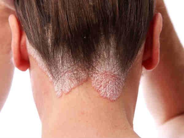 Bật mí tất cả các cách trị nấm da đầu tận gốc