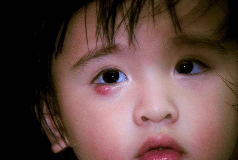 Hướng dẫn cách chữa trị chắp mắt ở trẻ em đơn giản nhất