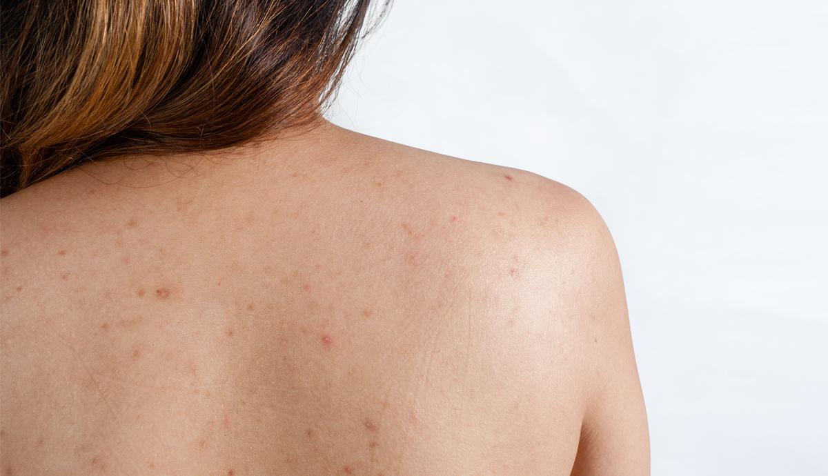 Cách trị viêm nang lông sau sinh hiệu quả mà vô cùng đơn giản