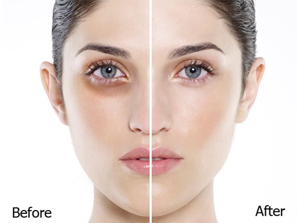 Hướng dẫn trị thâm quầng mắt bẩm sinh hiệu quả