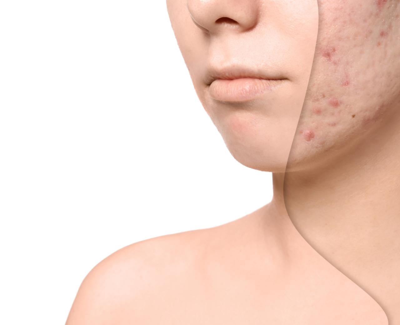 4 cách điều trị sẹo rỗ hiệu quả lên tới 90% ngay lập tức