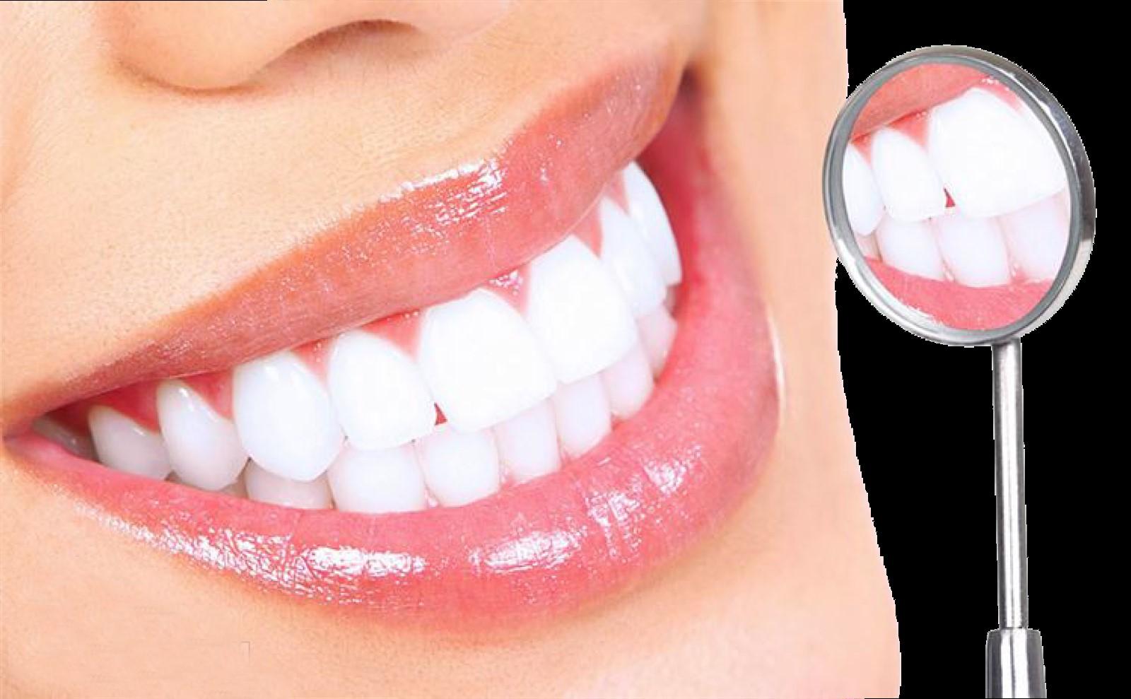 Cách tẩy trắng răng hiệu quả