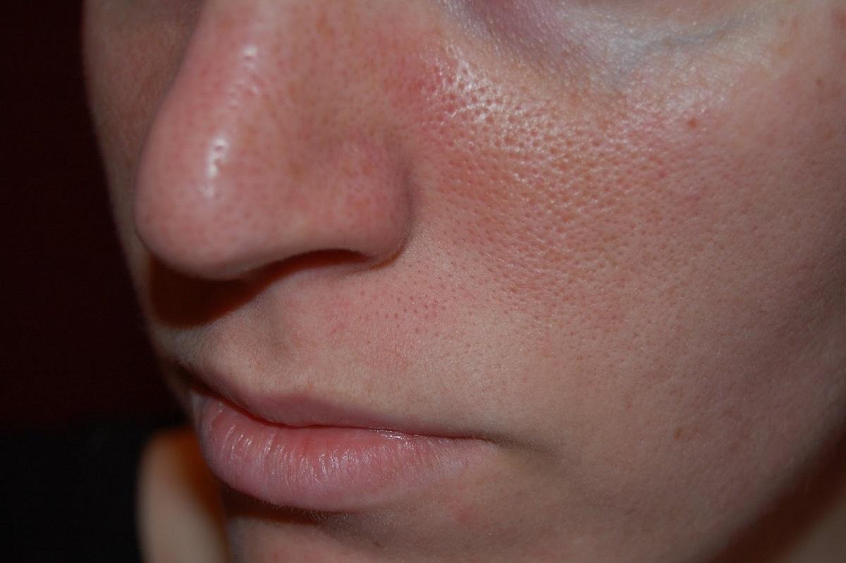 Bật mí tiêu diệt viêm lỗ chân lông hiệu quả